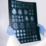 zawód na n - Neurolog